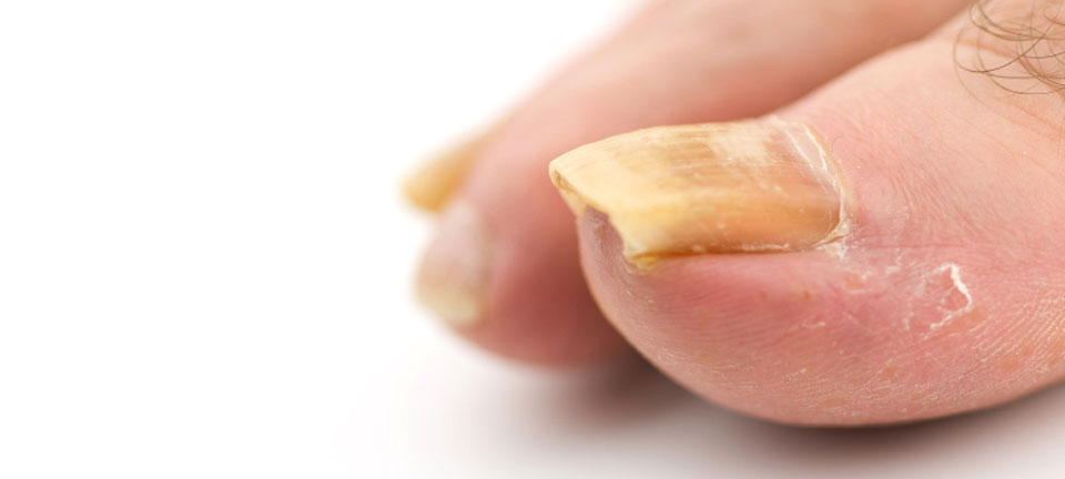 What Causes Fungal Nail Infection & Treatments - Health and Style ...