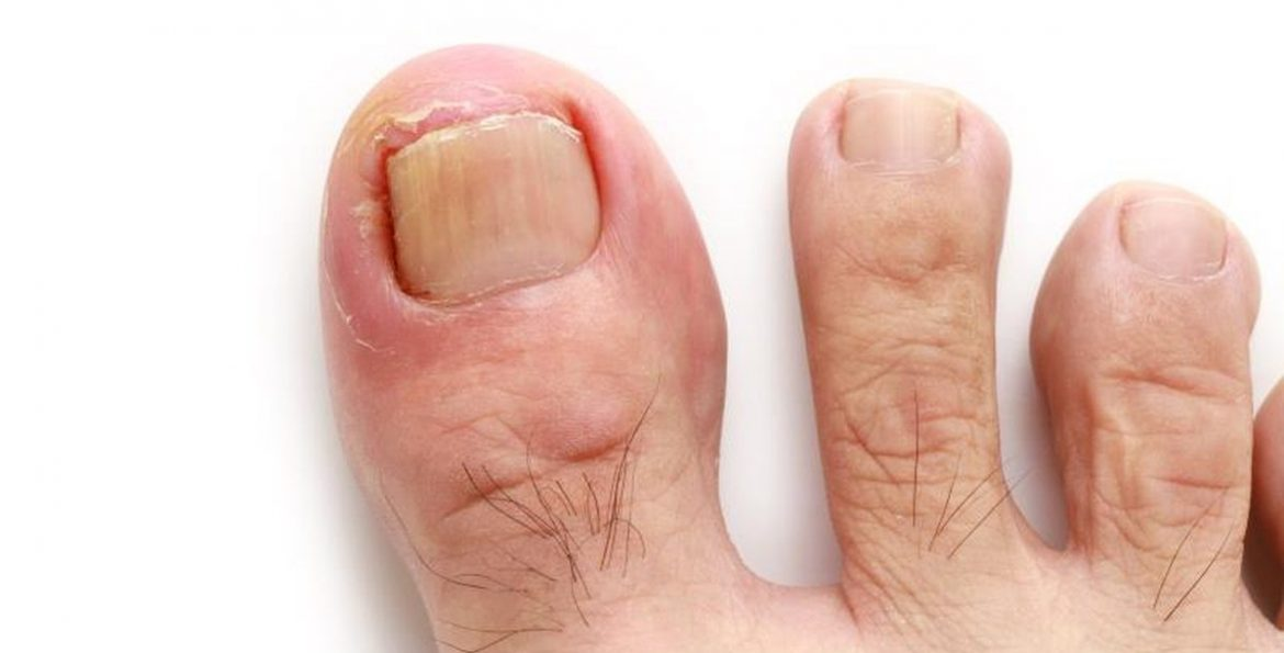 Ingrown-Toenails.jpg