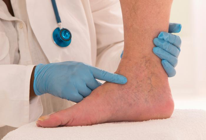 Neuroma-Treatment.jpg